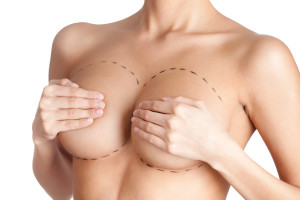 breast-lift